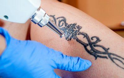 Preparación para técnicas invasivas, tatuajes, marcajes, piercings...